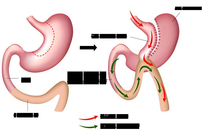 جراحة مصغرة لتحويل المعدة