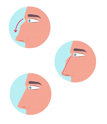RHINOPLASTY (NOSE AESTHETICS)