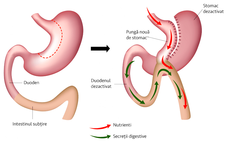 MINI GASTRIC BY-PASS